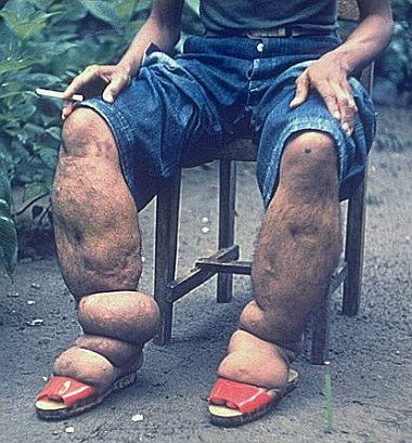 Elephantiasis is a disease that is characterized by the thickening of the skin and underlying tissues, especially in the legs and genitals.