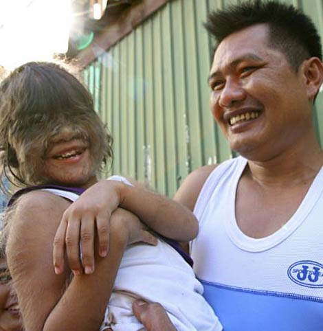 Sześcioletnia tajlandzka dziewczynka, Supatra Sasuphan, (Congenital Hypertrichosis