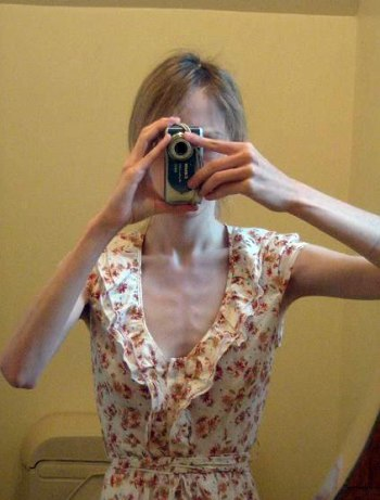 10anorexic-woman.jpg